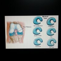 uszkodzenie łękotki